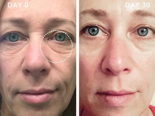 EVER Skincare works!